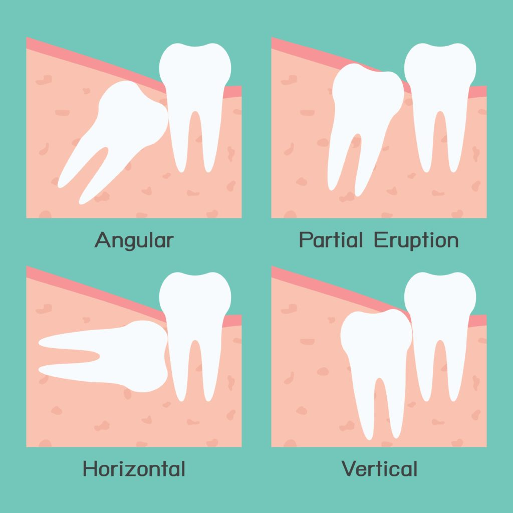 Diagram of partially or fully impacted wisdom teeth