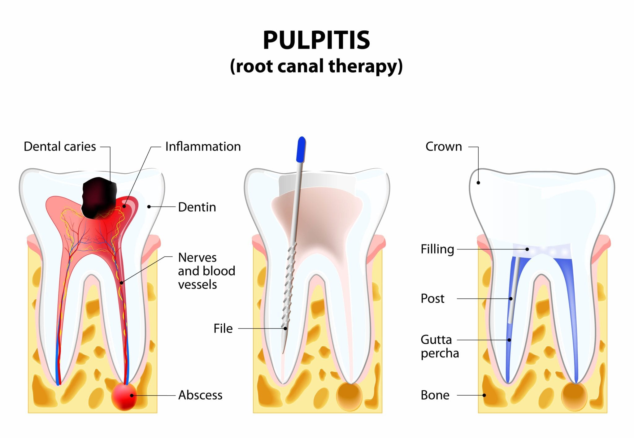 Explanation of the root canal process