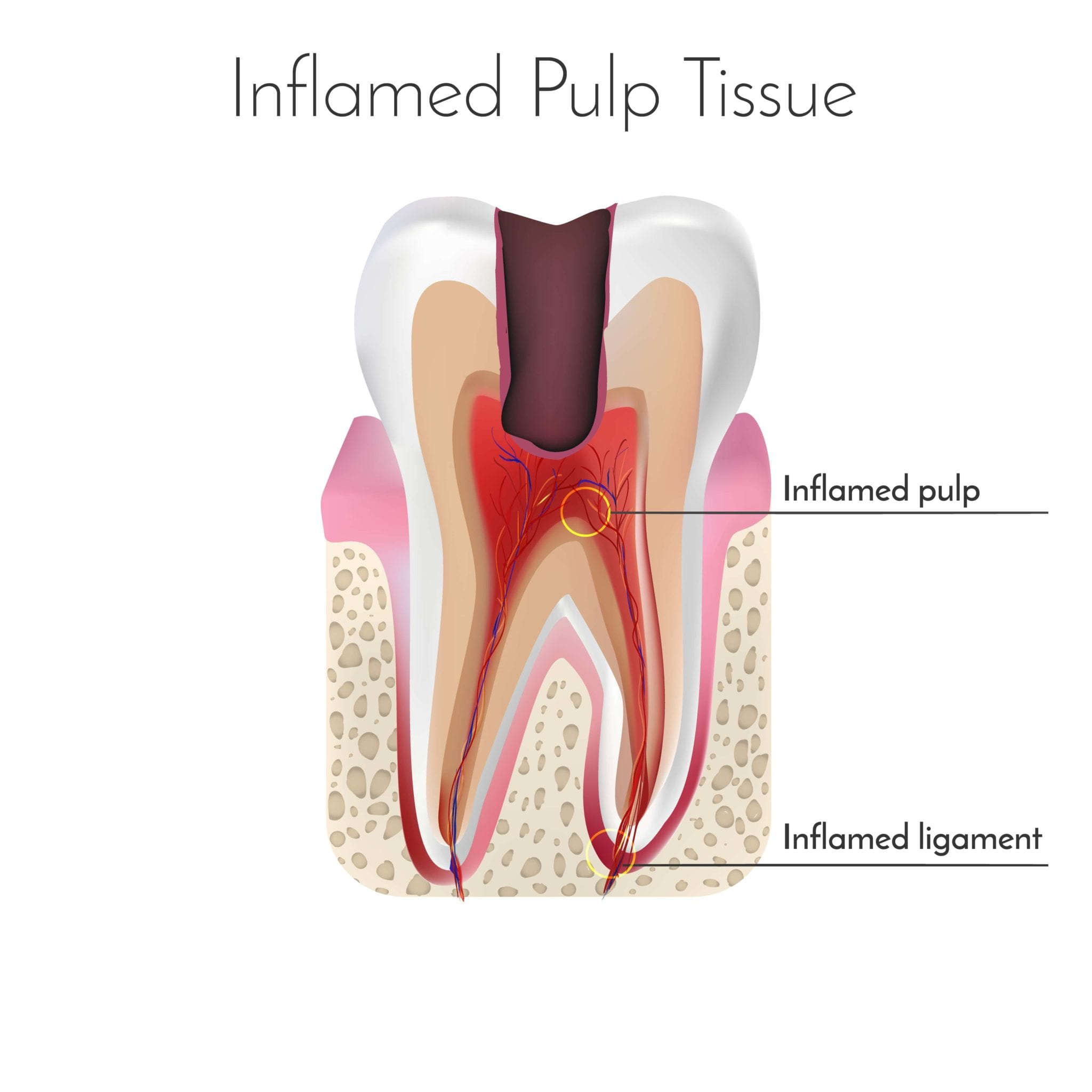 Diagram of a tooth with inflamed pulp
