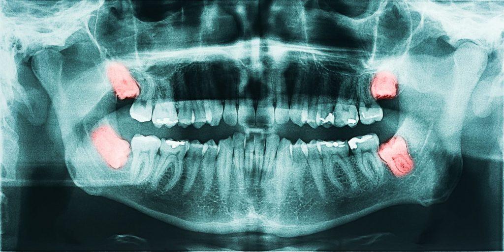 x-ray image of erupting wisdom teeth