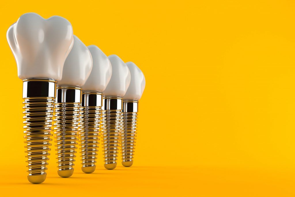 Dental implants lined up on a yellow background
