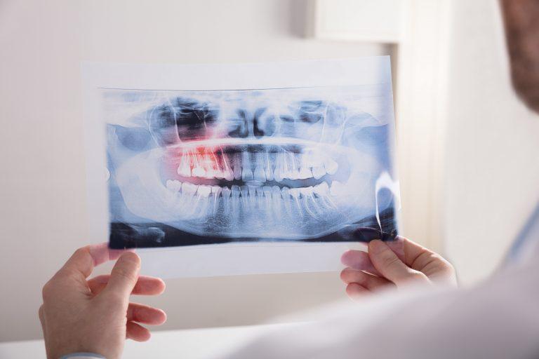 dentist looking at dental x-ray film