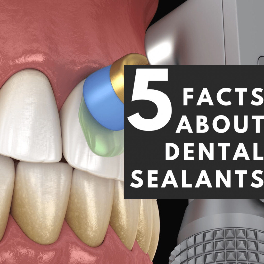 """title banner for """"5 facts about dental sealants"""""""