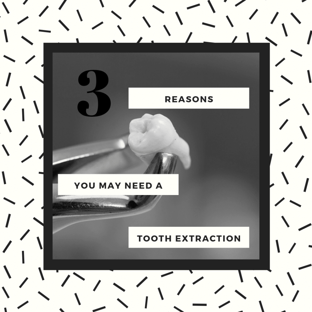 "Title banner for ""3 reasons you may need a tooth extraction"""
