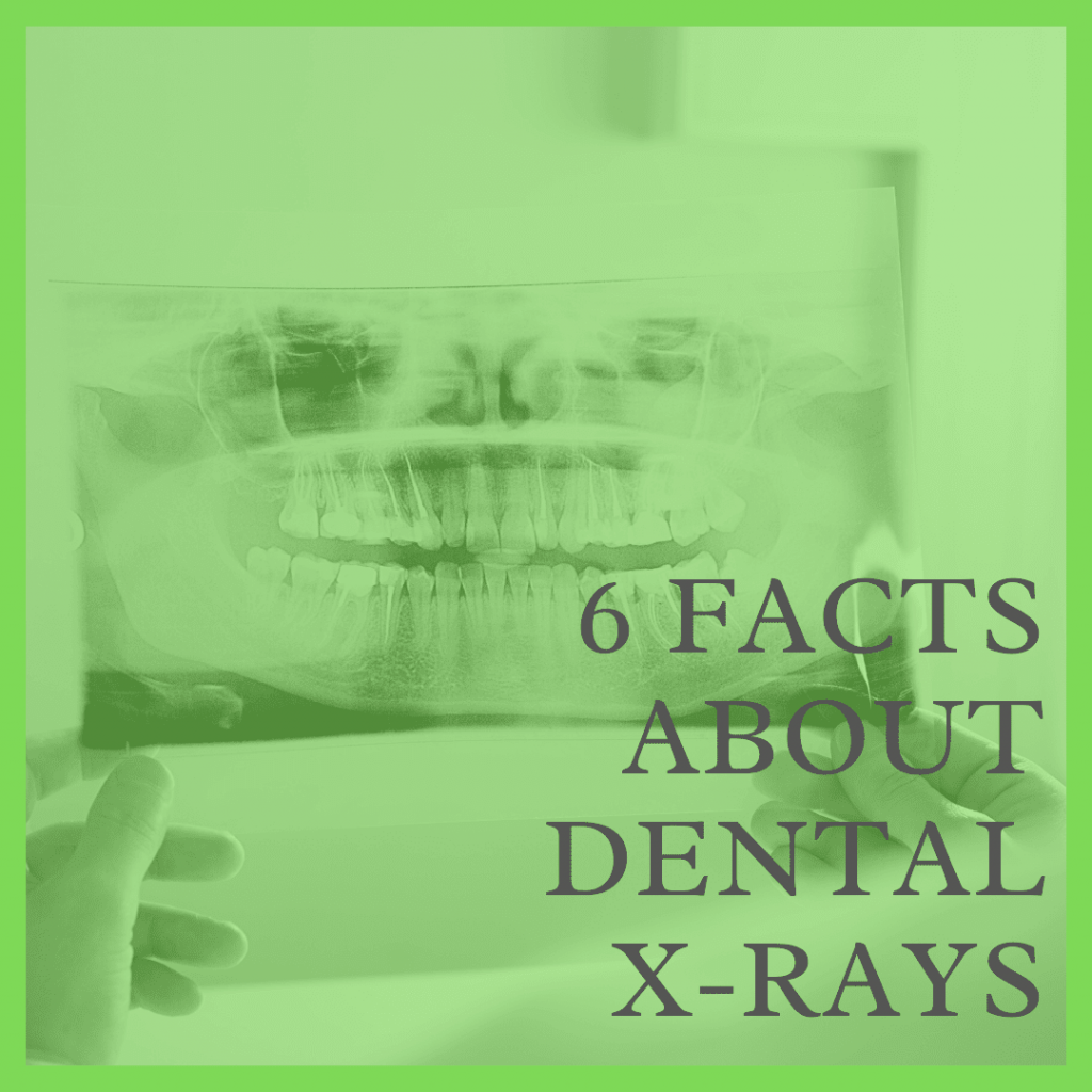 6 Facts About Dental X-Rays