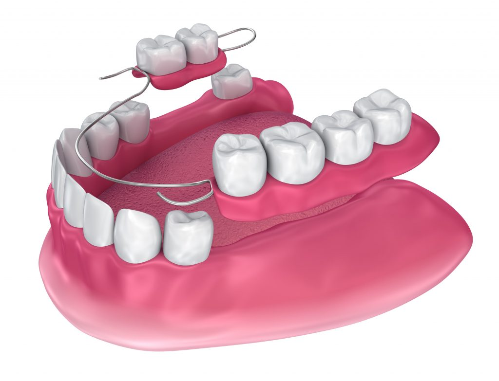 Aurora, IL Dentist