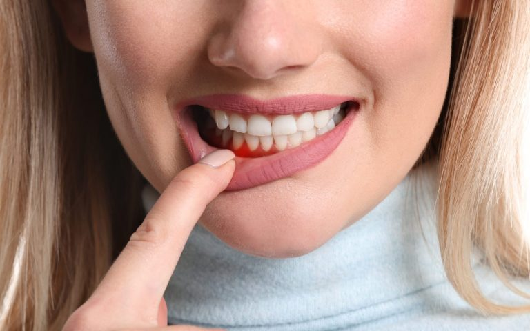 Woman Pulling Down Lip Revealing Gum Disease